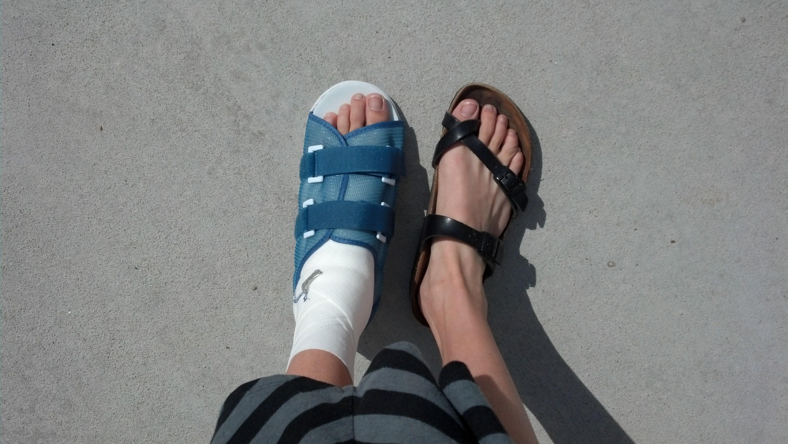 Best Shoes For Broken Foot
